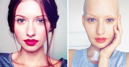 醫生告訴這位懷孕的模特兒因為癌症她必須流產,而這就是她最勇敢的決定!
