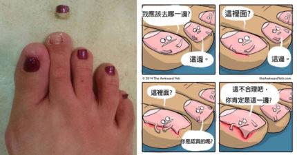 17個讓人覺得超噁的「腳指甲知識」 人類的腳指甲其實是爪子