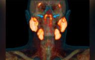 科學家在人體喉嚨「發現新器官」 採檢推測:可能每個人都有!