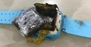 智慧手錶突爆炸!4歲女童小手「當場炸爛」 父愣:舅舅網路買的